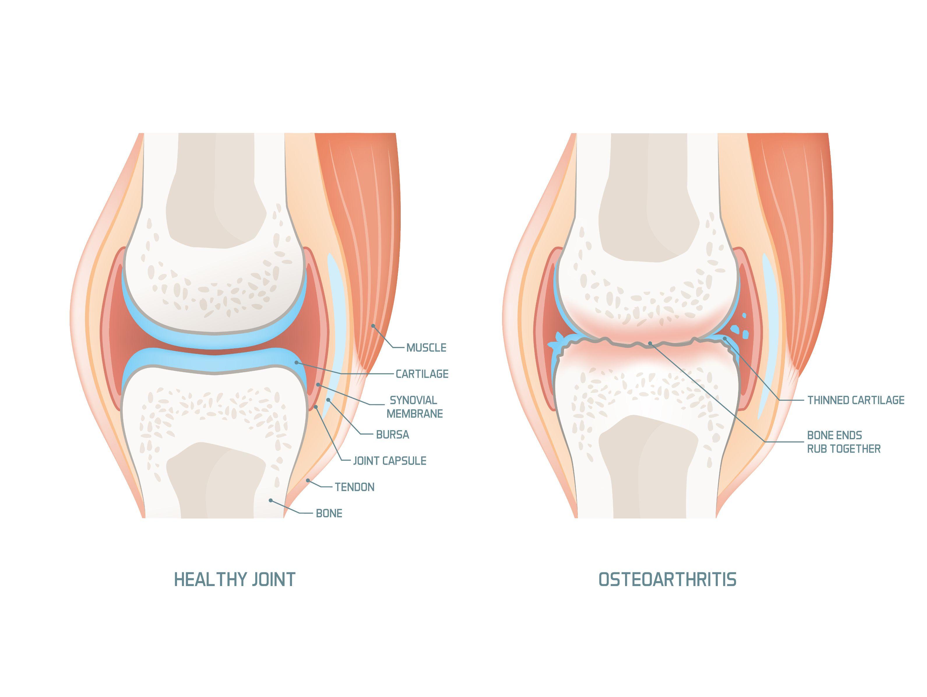 synovitis a térdízület kezelésében