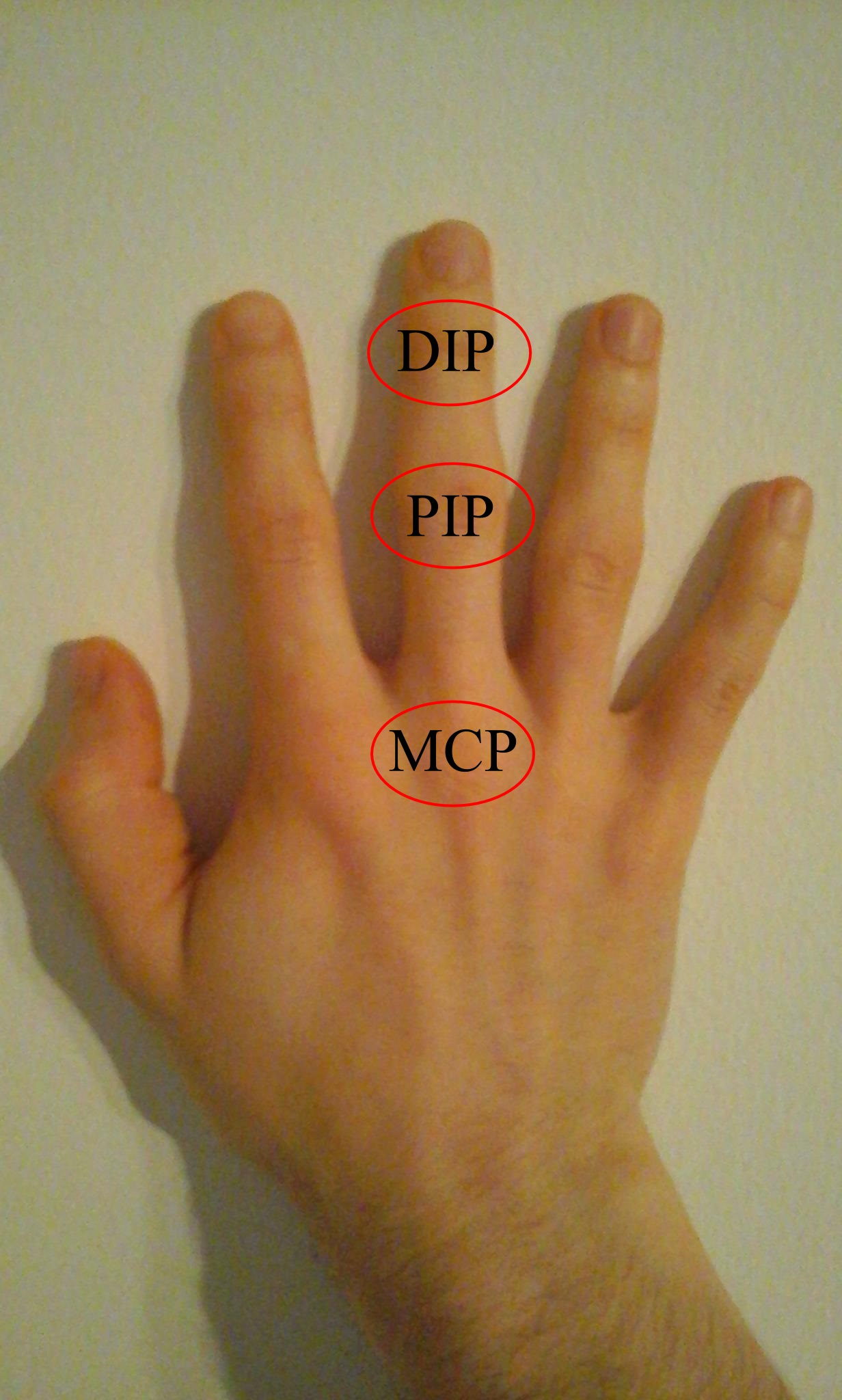 növekedések a kézkezelés ujjai ízületének csontainál éjszakai fájdalom az ízületekben gyermekeknél