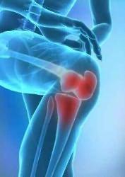 Gonartrózis 1 fokú térdízület kezelés