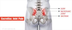 csípő fájdalom. az ízület