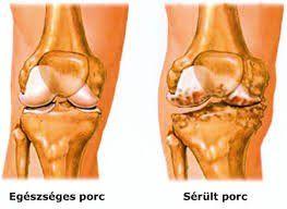 artrózis sarok túrós kezelés