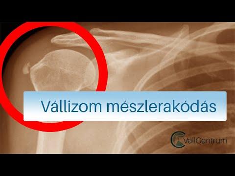 izomfájdalom csípőpótlás után