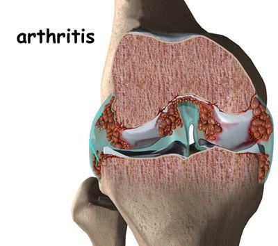 polyarthritis arthrosis kezelés)