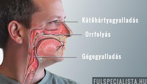 ízületi sinusitis tünetei és kezelése)