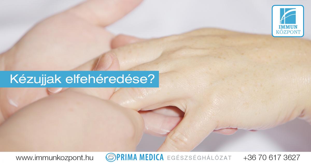 szisztémás kötőszöveti betegség tünetei)