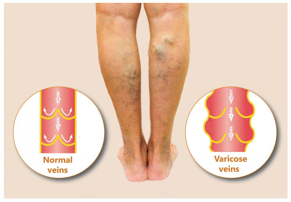 hogyan lehet enyhíteni a lábak ízületeinek duzzanatát milyen gyorsan fejlődik a térd artrózisa