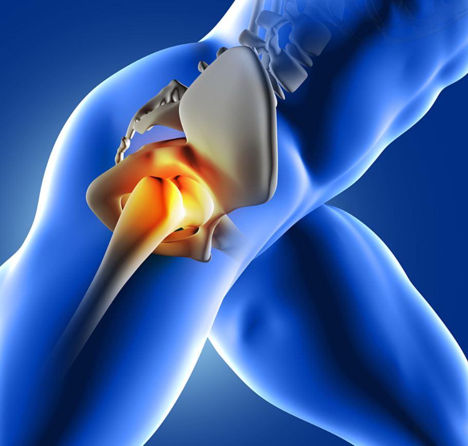csípő műtét fájdalom csípőízület coxarthrosis kezelése