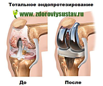 térdízület kezelési movalis szinovitisz fájdalom, amely kiterjed a csípőízületre
