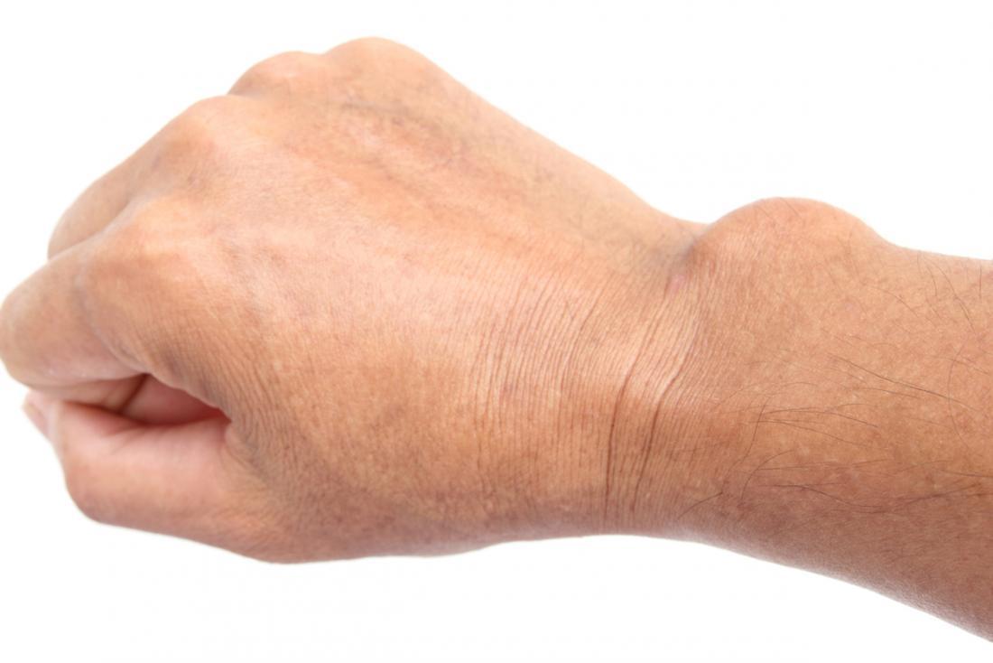 a csuklóízület és a kéz duzzanata)