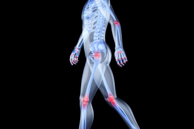 Kondroprotektorok a térd csontritkulására A legjobb kondroprotektorok az ízületek kezelésére