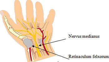 a bal könyökízület fájdalma és zsibbadás