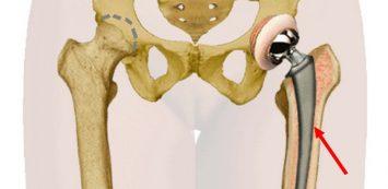fájdalom a csípőízület protézisek után fájó ízületek és kezelésük