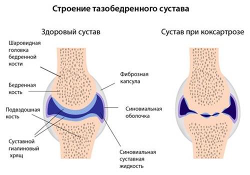 a csípőízület deformáló coxarthrosisának 2 fokos kezelése