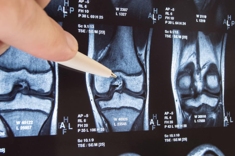 hatékony gyógyszer a térdízület fájdalmairól váll fájdalom capsulitis