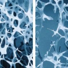 csontritkulás gyógyszer arthra)