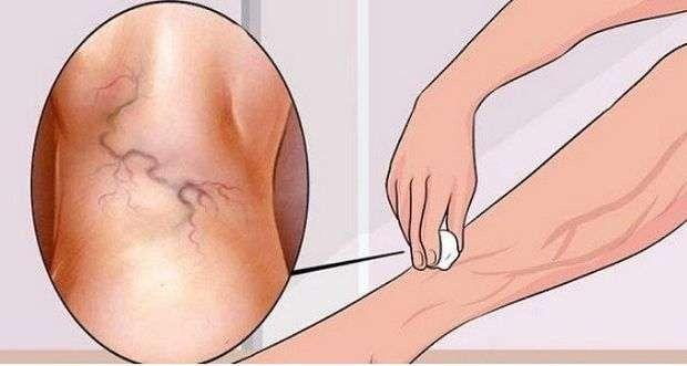 a leghatékonyabb(nak mondott) házi gyógymódok az ízületi gyulladás kezelésére - ködpiszkáló