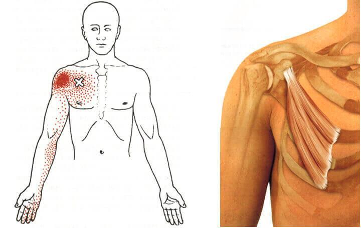 fájó fájdalom a vállízületben feszítés után