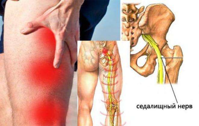 térdízület fájdalma a borjúban