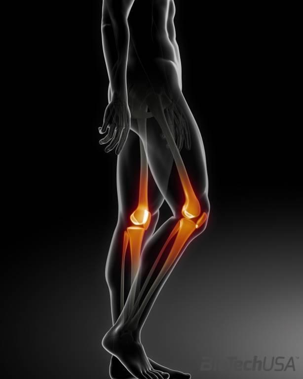 térd osteoarthrosis 1 fokos kezelés
