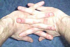 ízületi fájdalom mozogva kis ujj fájó ízület