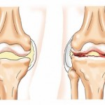 A vállízület poliartritisa: okai, tünetei, kezelése - Könyök