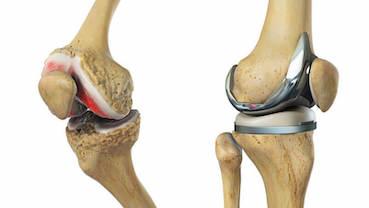 hogyan lehet kezelni a térdízület 3. fokú artrózisát