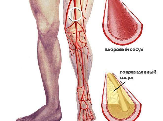 hogyan lehet lefogyni a térd artritiszével)