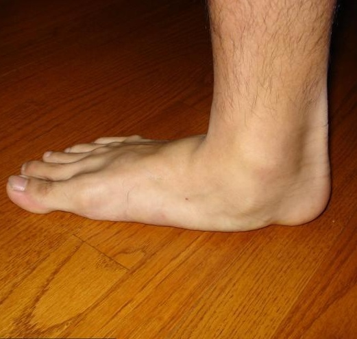fájdalom a láb külső ízületében
