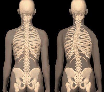 karok és lábak csuklóízületei gyertyák az alsó hátfájás és ízületek kezelésére