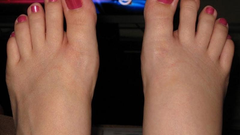 Arthritis | Rehab-Rába Kft