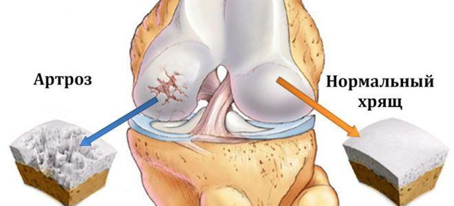 A térdízület kopása (arthrosis)