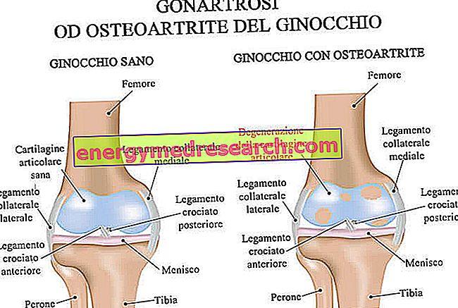gonarthrosis térdízület betegség)