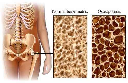 a csontritkulás a legjobb gyógymód)
