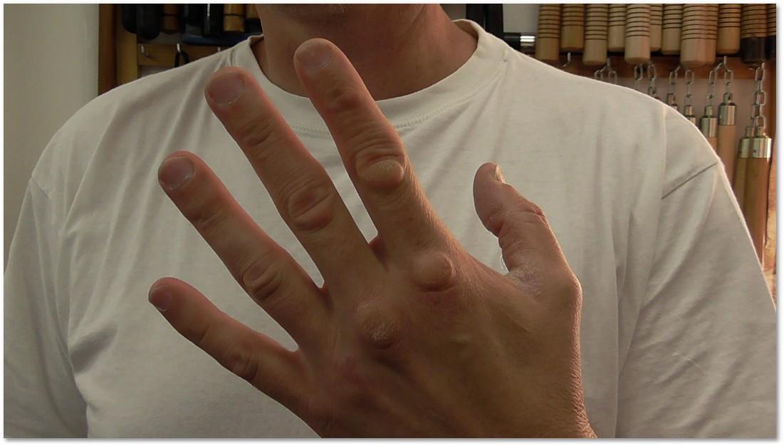 eszköz az ujjak ízületeihez