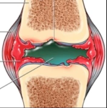 a térdízület gennyes artrózisa)