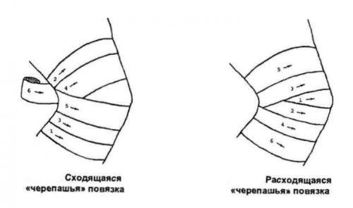 a térdízület artrózisával gőzölhető-e