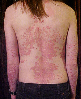 a kefe ízületeinek gennyes betegségei)