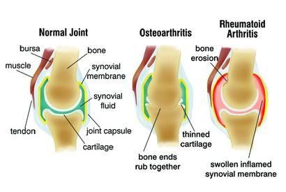 ízületi gyulladásos artrózis kezelés jelei)
