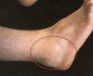 ízületi fájdalmak a masszőrnél juharlevél gyógyítja az ízületeket