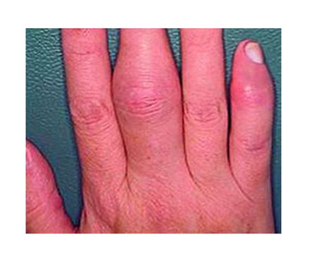 az ujjgyulladás tünetei a mutatóujj ízületének fájdalma