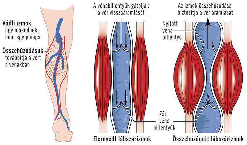térdfájdalom hypotermia után)