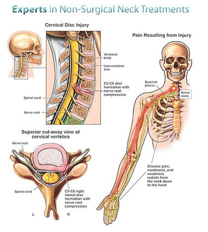 nyaki fájdalmak esetén