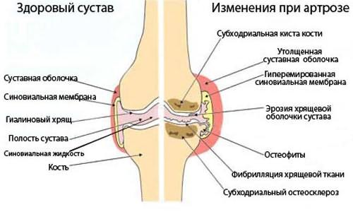 az ízületek ízületi gyulladásának masszázskezelése)