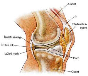 térdízület második fokú deformáló artrózisa