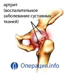 a térdízület 1. fokú deformáló artrózisa