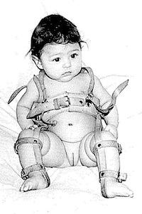 ízületi dysplasia csecsemők kezelésében ízületi fájdalom az ujjak hajlításával
