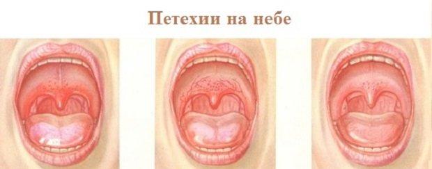 a mononukleózis fáj az ízületekről)