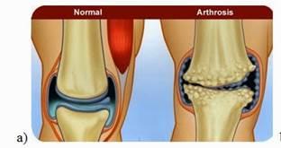 a térd artrózisa 2 evőkanál