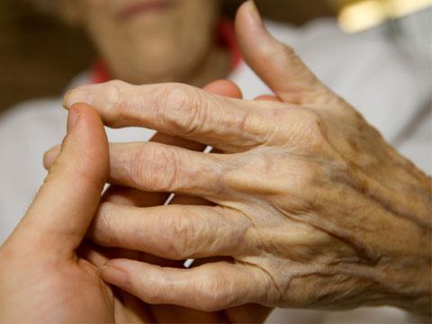 a kezek ízületeinek nodularis artrózisa)