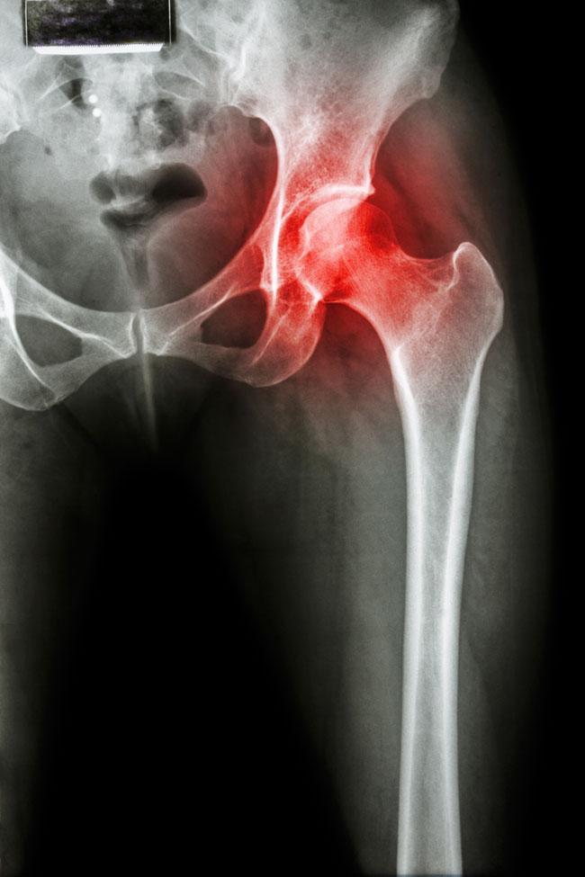 csípőízületi fájdalom séta után)